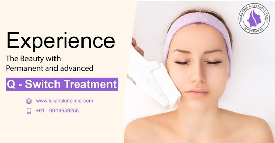 Q switch treatment in hyderabad