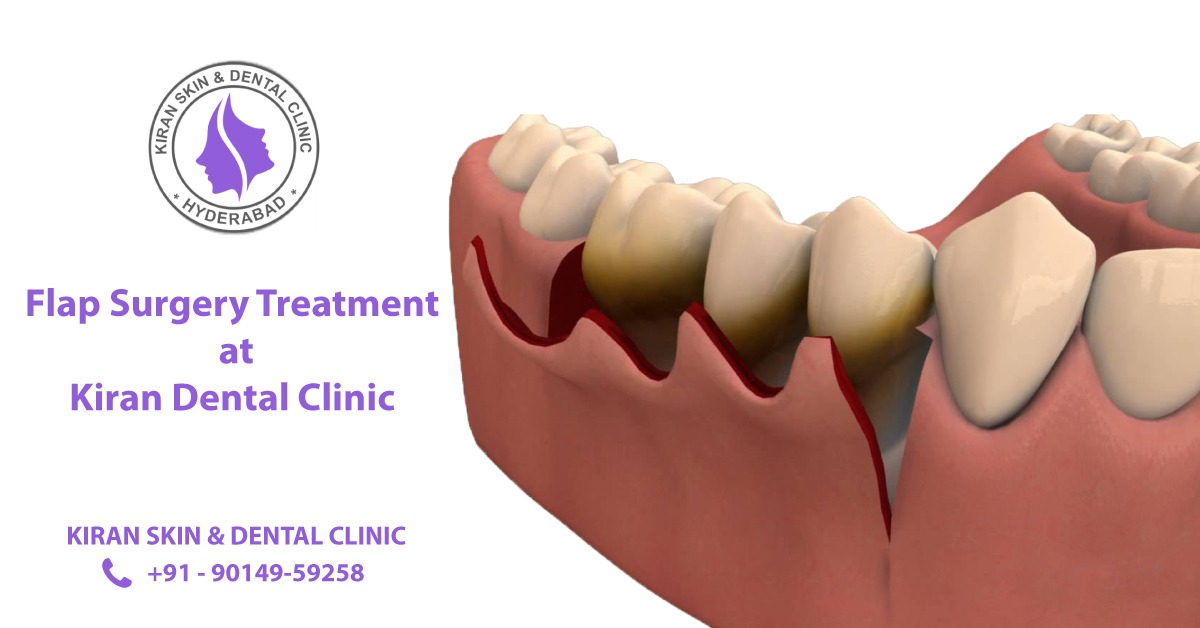 Flap_Surgery_Treatment_in_Hyderabad