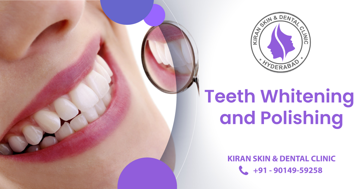 Teeth_Whitening_and_Polishing_Treatment_in_Hyderabad