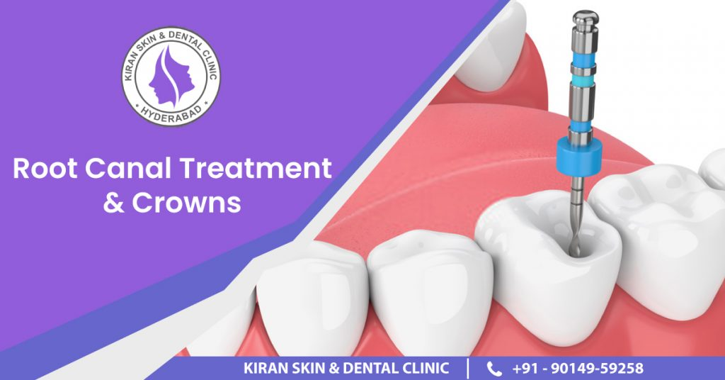 KDC_ROOT-CANAL-TREATMENT-&-CROWNS