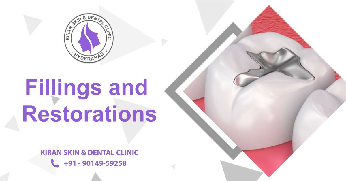 Fillings_and_Restorations_Treatment_in_Hyderabad