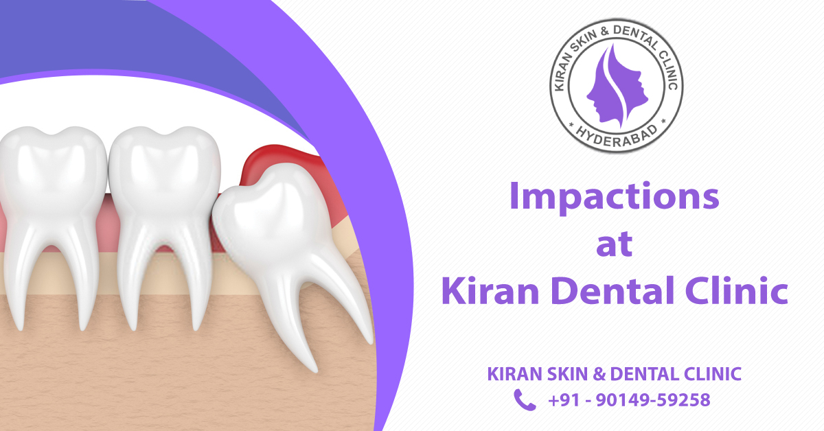 Tooth_Impactions_treatment