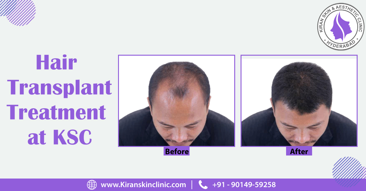 Hair_Transplant_Treatment_in_Hyderabad