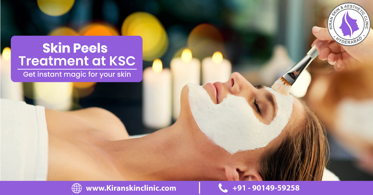 Skin_Peel_Treatment_in_Hyderabad