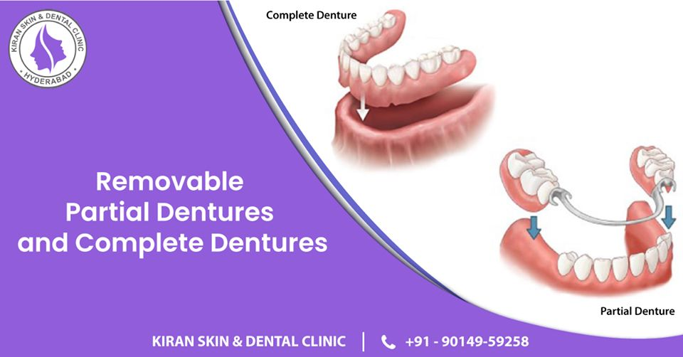 Removable_partial_dentures_and_complete_dentures Treatment