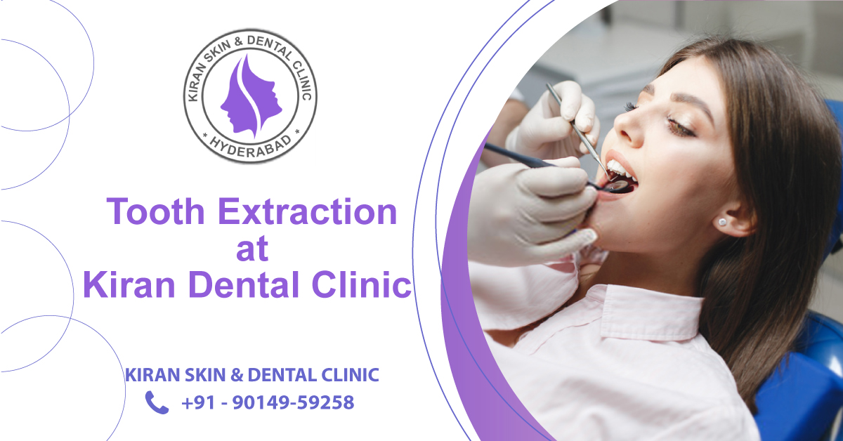 Tooth_Extraction_Treatment