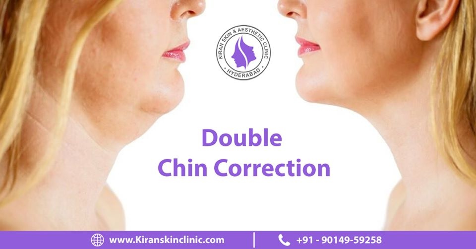 Double_chin_correction