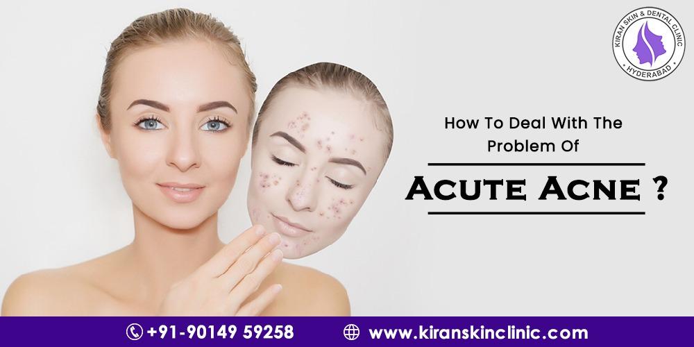 Acute Acne
