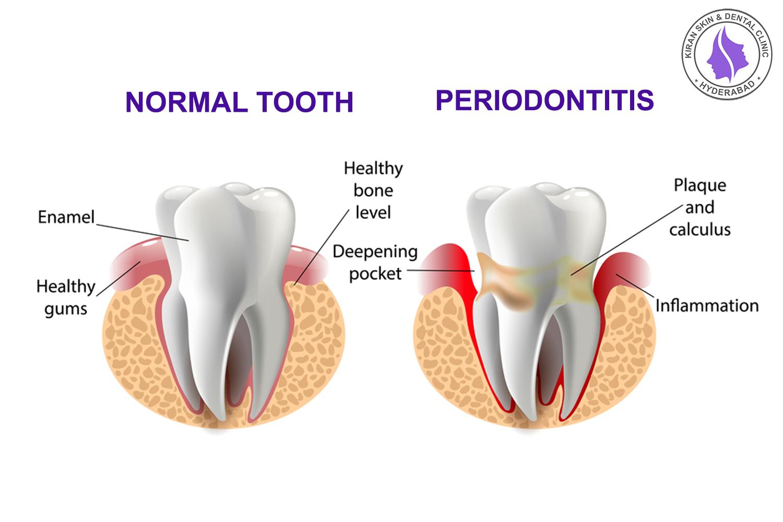 gums treatment
