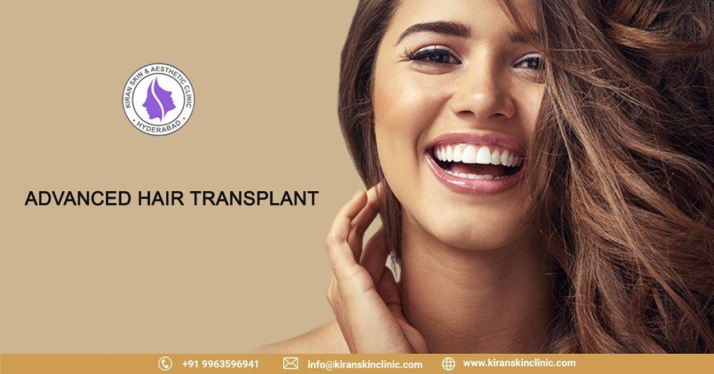 #hair transplant