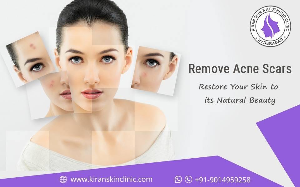 #Acne_Scars_Treatment