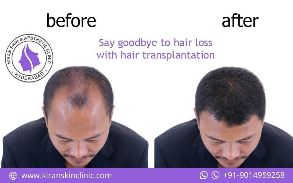 Hair Transplantation In Hyderabad Laser Hair Removal