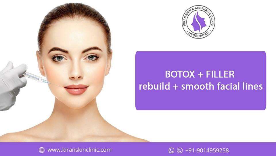 #Botox_Trearment_Hyderabad