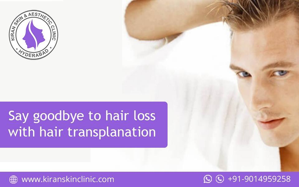 #Hair_Loss_Treatment