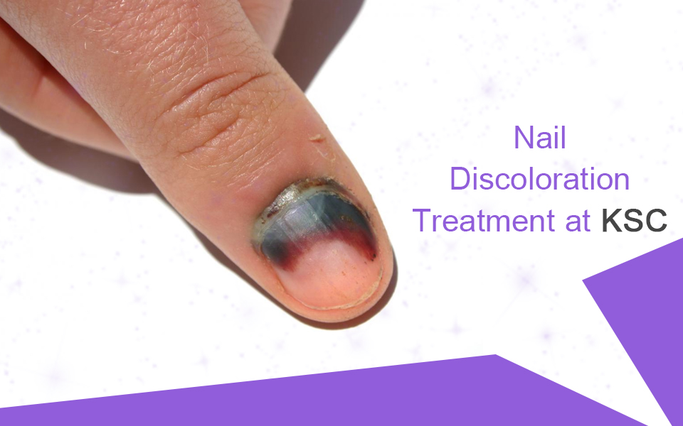 Nail Discoloration Treatment In Hyderabad Kiranskinclinic