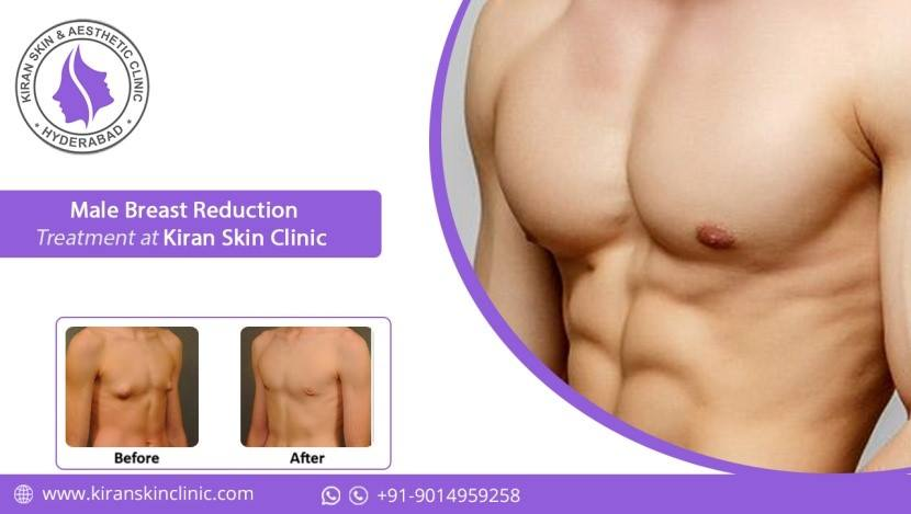 Male Breast Reduction Treatment in Hyderabad