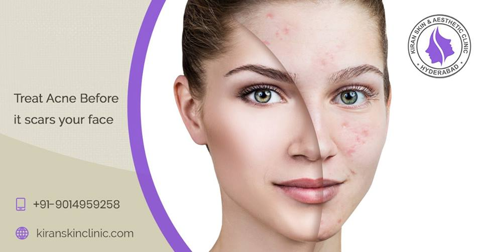 Best Skinclinic in Hyderabad