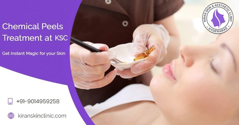 ChemicalPeels Treatment in Hyderabad