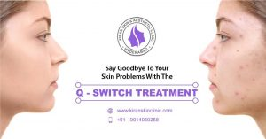 q switch laser treatment in hyderabad