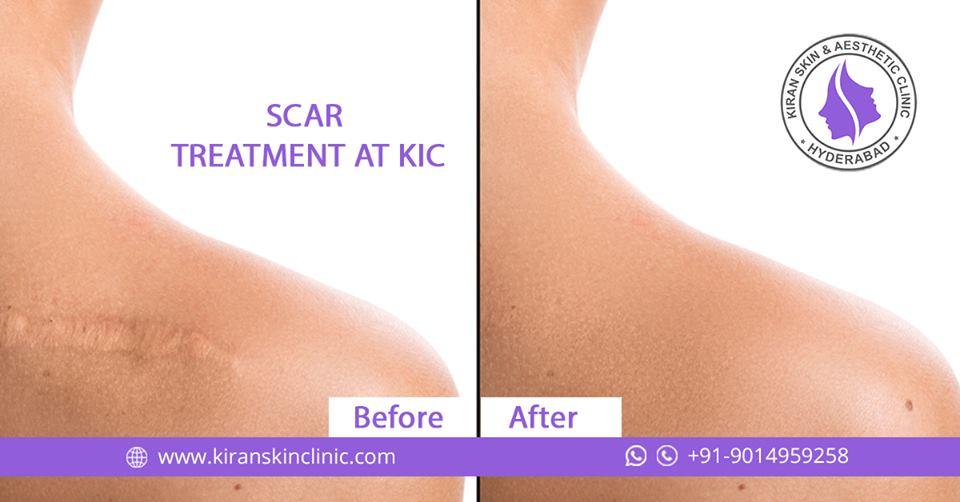 Scar treatment in Hyderabad