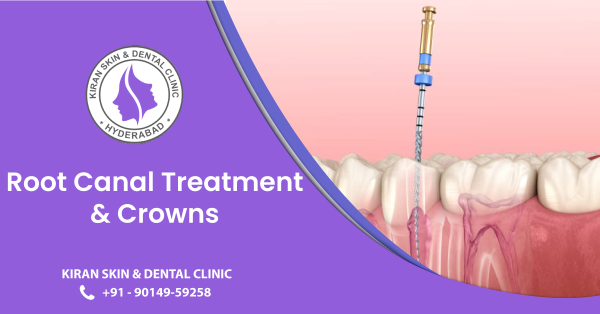 Root_Canal_Treatment
