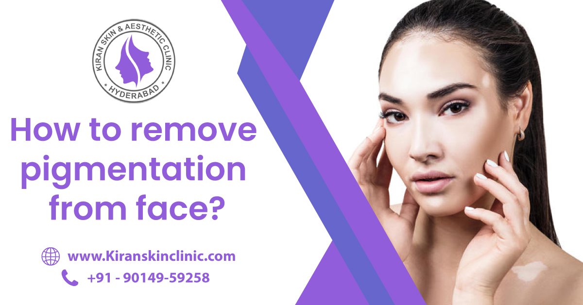 Skin_pigmentation_Treatment